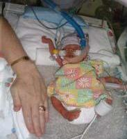 Molly_Rose in NICU